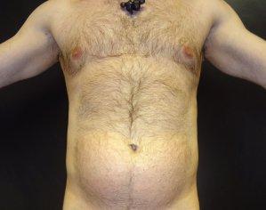 Manhattan liposuction before 16